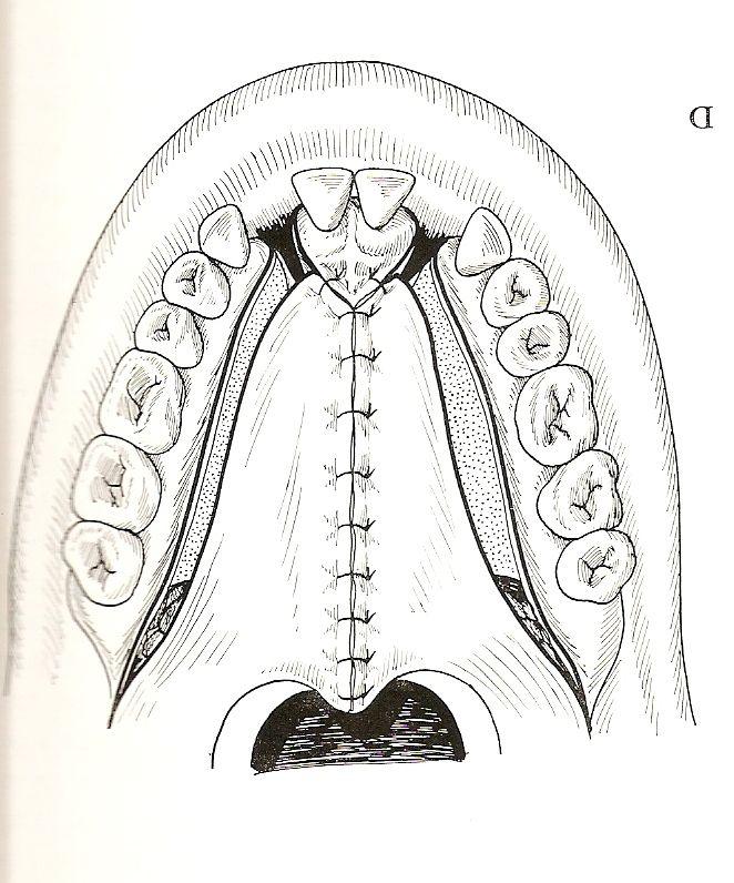 espras SHARE » Closure of cleft palates